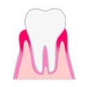 歯周病の進み方1