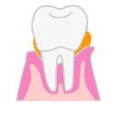 歯周病の進み方2