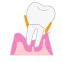 歯周病の進み方3